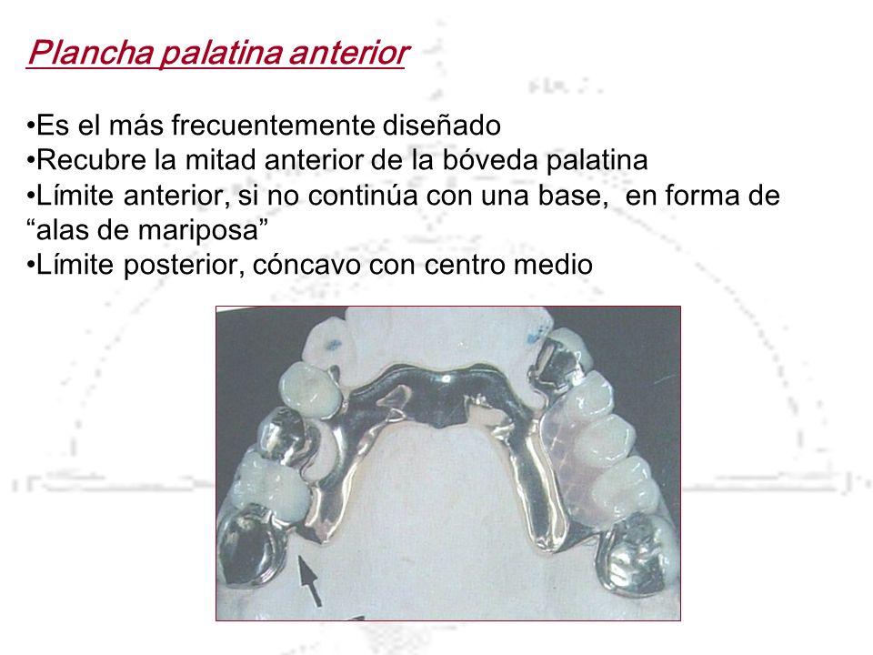 Plancha palatina anterior