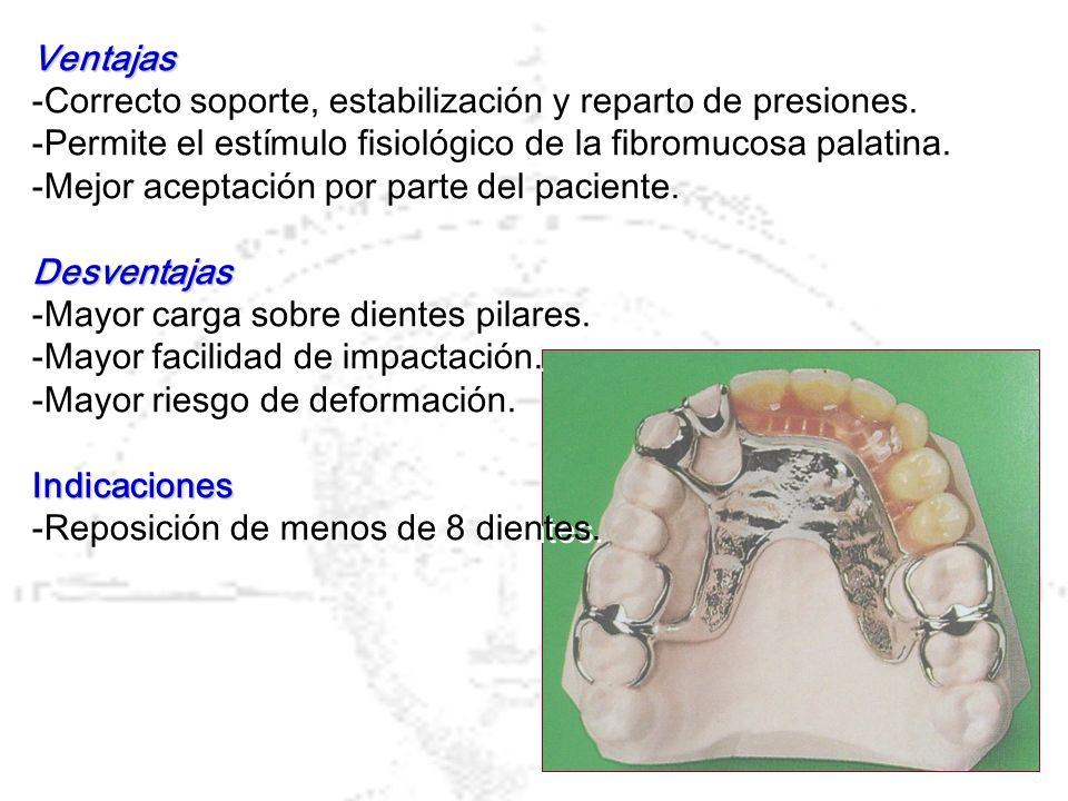Ventajas -Correcto soporte, estabilización y reparto de presiones. -Permite el estímulo fisiológico de la fibromucosa palatina.