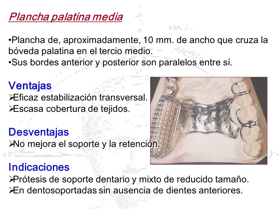 Plancha palatina media