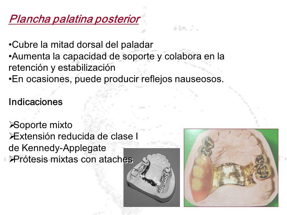Plancha palatina posterior