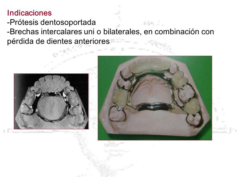 Indicaciones -Prótesis dentosoportada.