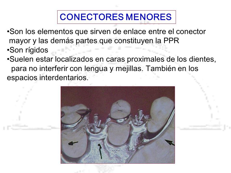 CONECTORES MENORES Son los elementos que sirven de enlace entre el conector. mayor y las demás partes que constituyen la PPR.