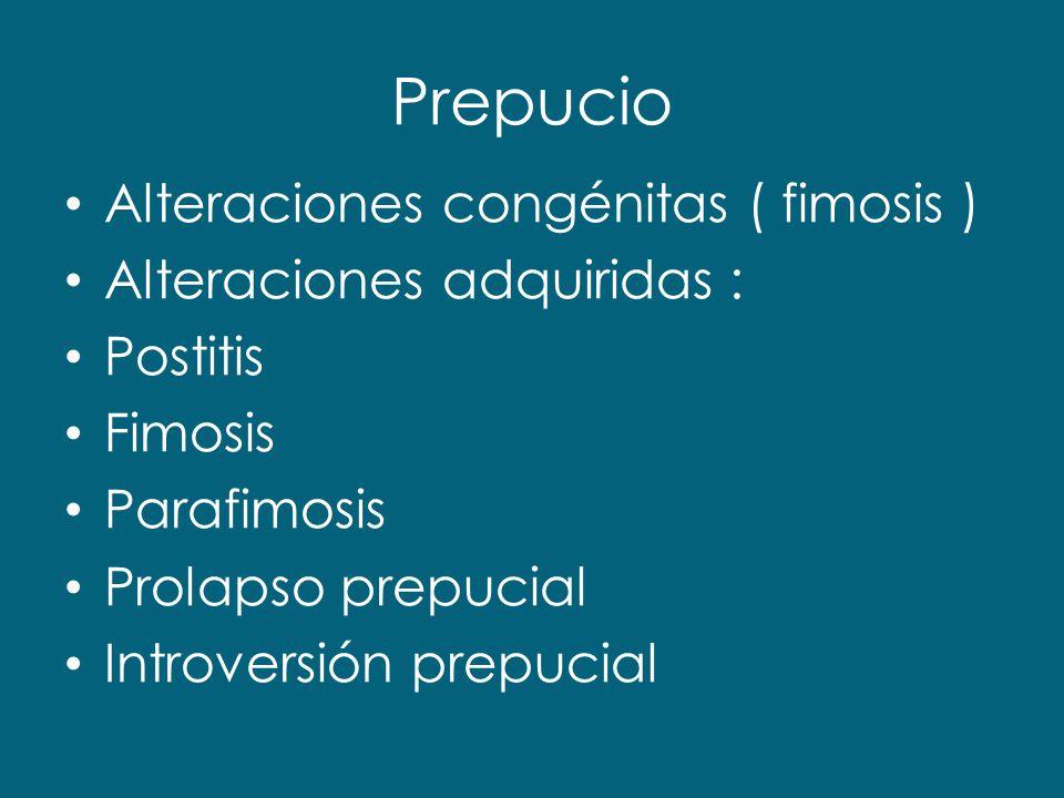 Prepucio Alteraciones congénitas ( fimosis ) Alteraciones adquiridas :