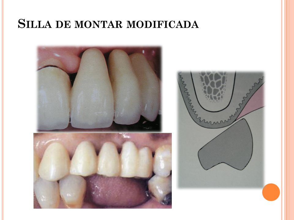 Dra grelly mireya reynoso ppt video online descargar - Silla de montar modificada ...