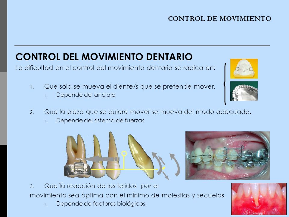 CONTROL DEL MOVIMIENTO DENTARIO