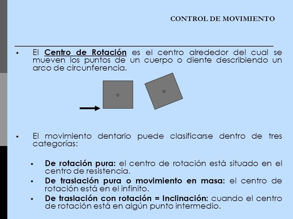 El movimiento dentario puede clasificarse dentro de tres categorías: