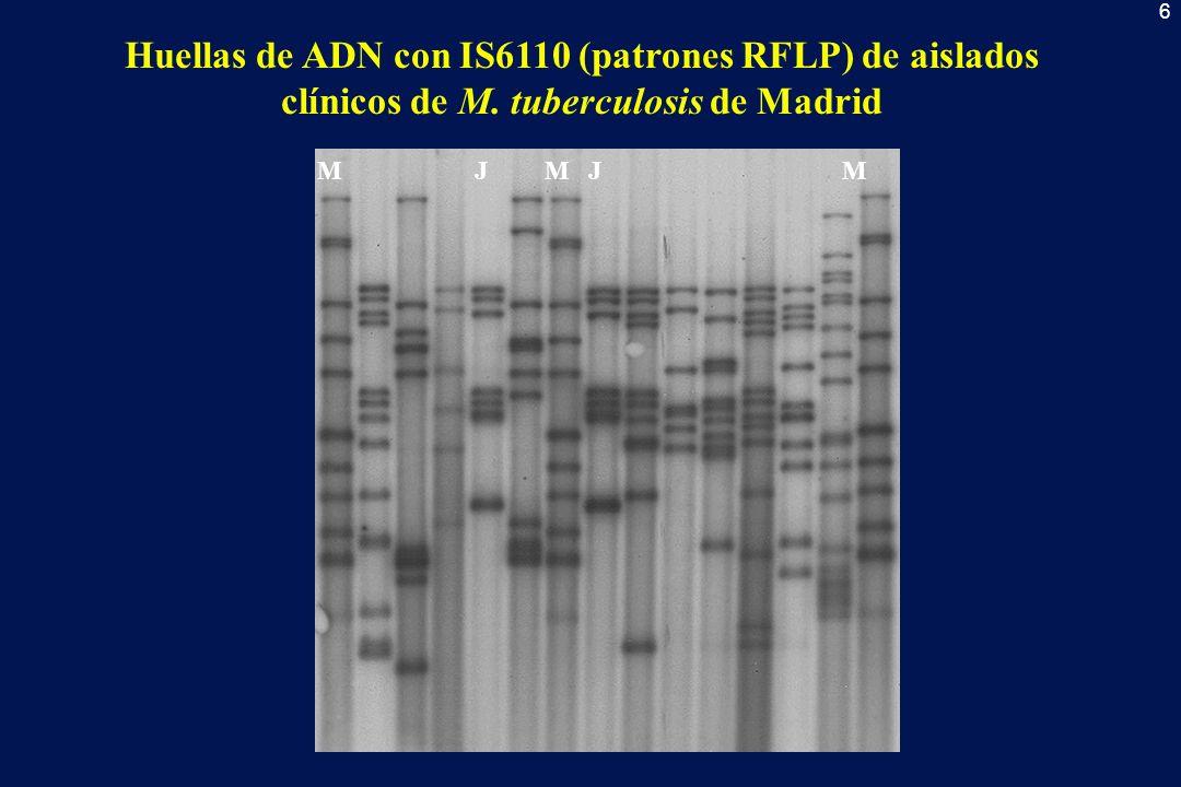 Huellas de ADN con IS6110 (patrones RFLP) de aislados clínicos de M