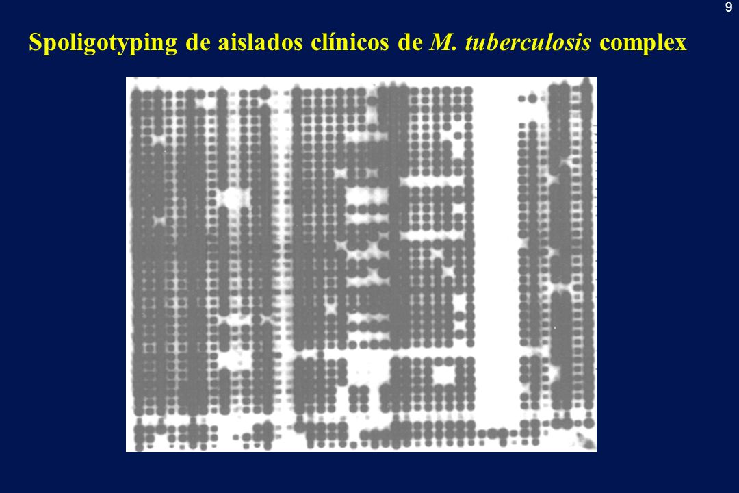 Spoligotyping de aislados clínicos de M. tuberculosis complex
