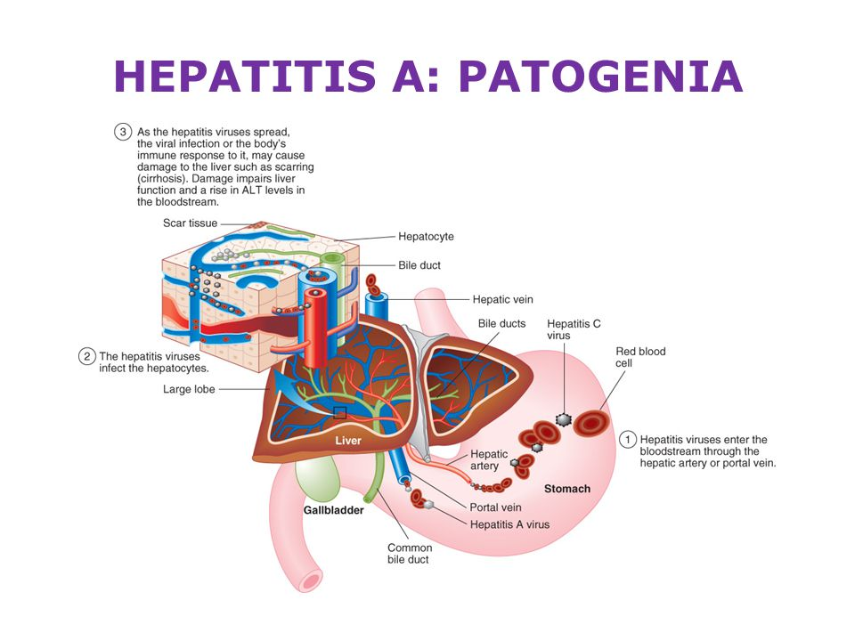 "a paper on the hepatitis viral infection The hepatitis a virus and brown presented a paper entitled ""observations on epidemic hemolysis is precipitated by viral hepatitis, including hepatitis a."