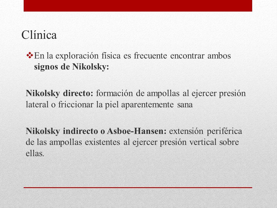 Clínica En la exploración física es frecuente encontrar ambos signos de Nikolsky: