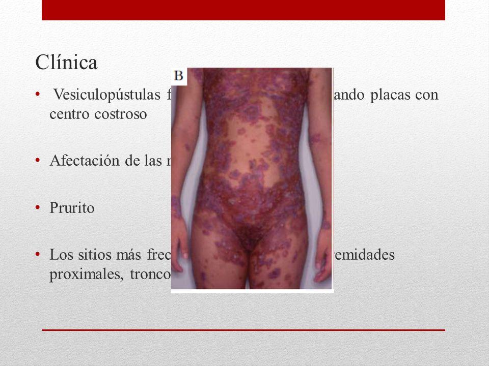 Clínica Vesiculopústulas frágiles confluentes, formando placas con centro costroso. Afectación de las mucosas es rara.