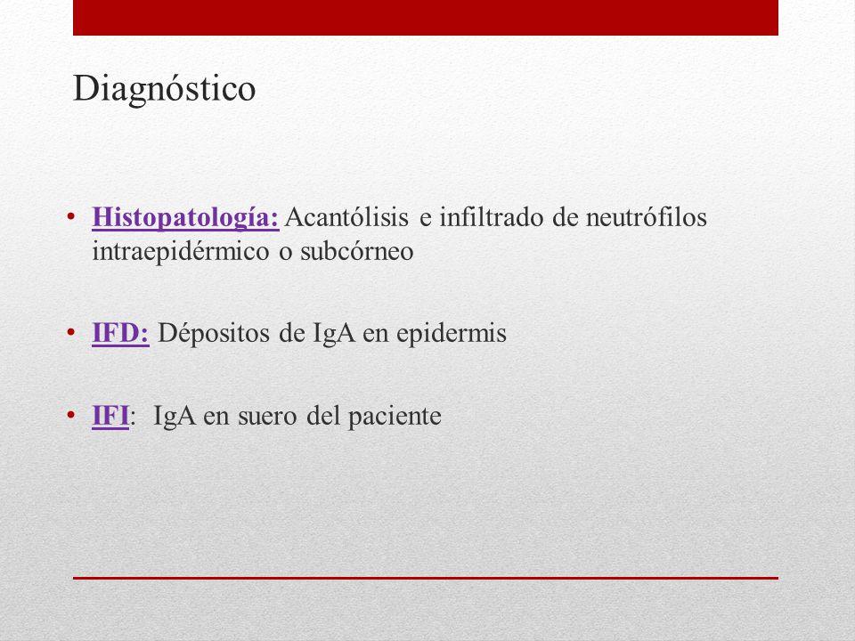 Diagnóstico Histopatología: Acantólisis e infiltrado de neutrófilos intraepidérmico o subcórneo. IFD: Dépositos de IgA en epidermis.