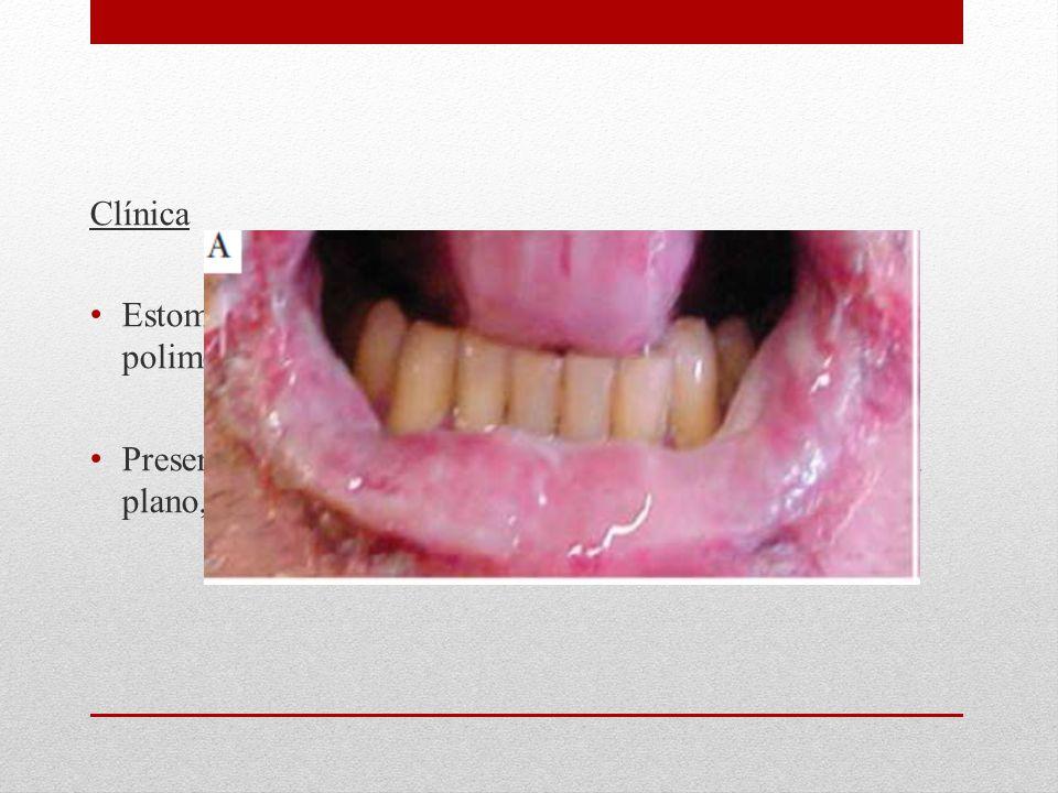 Clínica Estomatitis erosiva dolorosa y lesiones cutáneas polimorfas (Vesículas, ampollas, pápulas y placas)