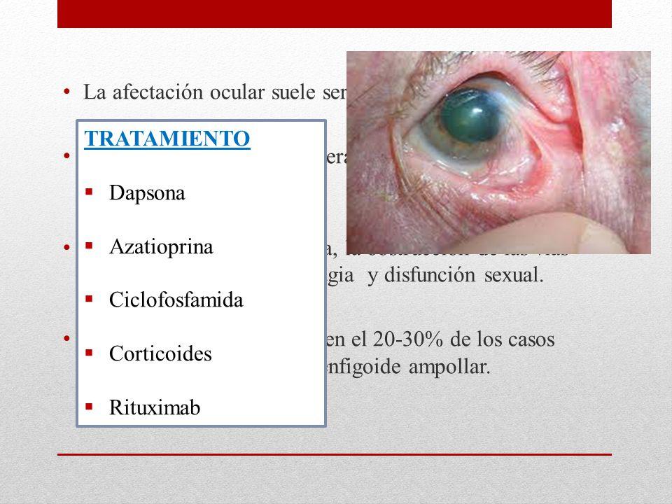 La afectación ocular suele ser bilateral