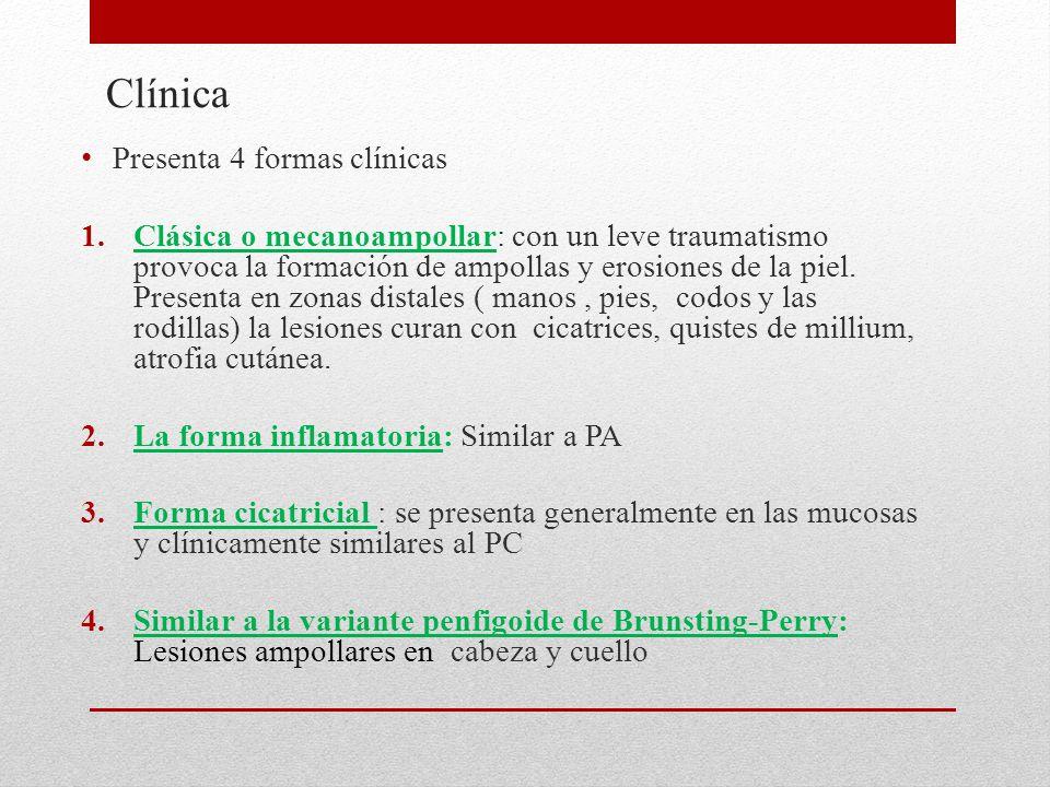 Clínica Presenta 4 formas clínicas
