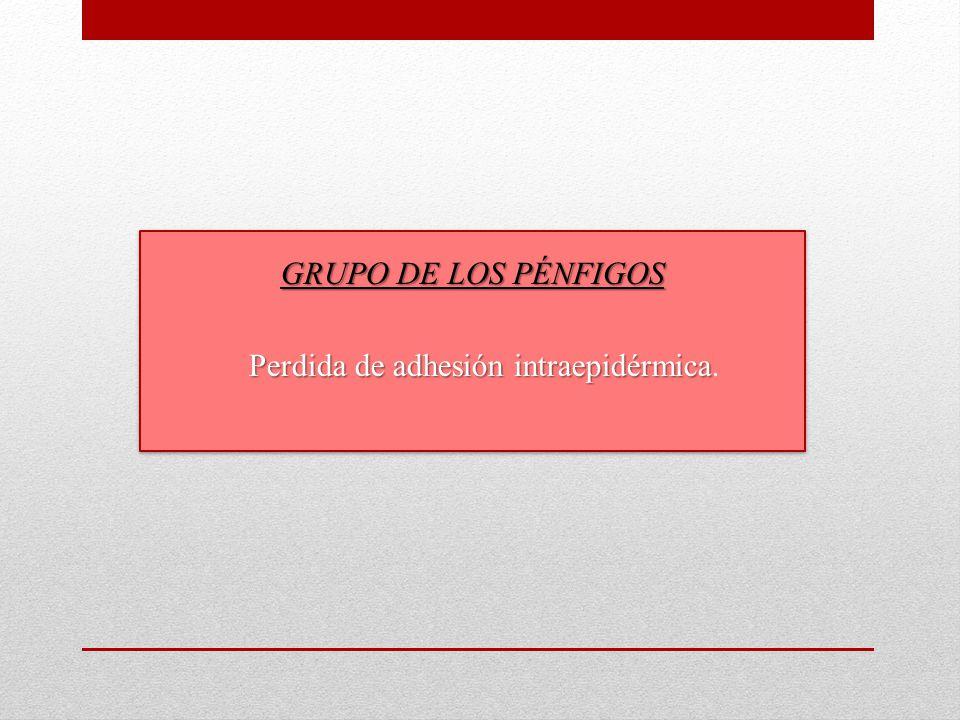 GRUPO DE LOS PÉNFIGOS Perdida de adhesión intraepidérmica.