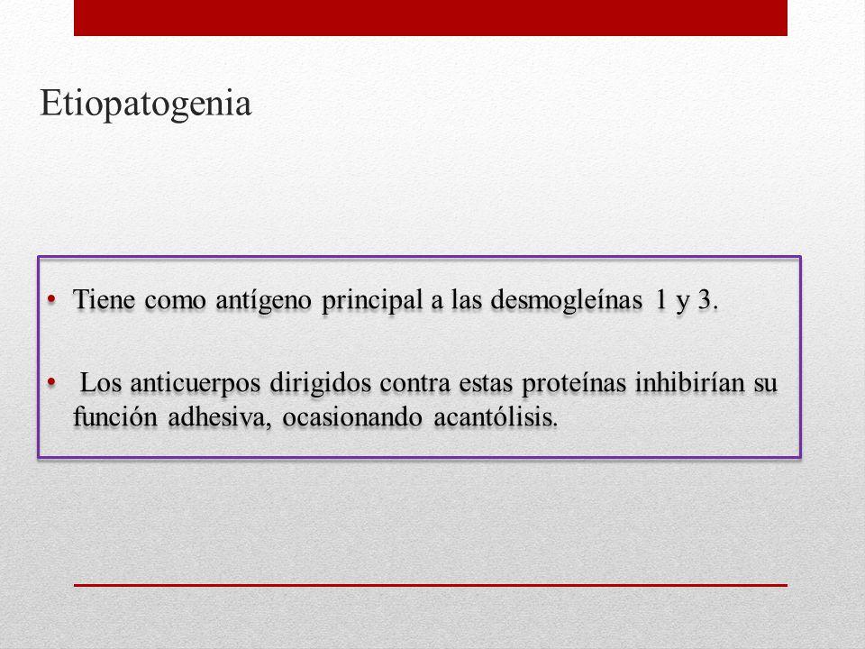 Etiopatogenia Tiene como antígeno principal a las desmogleínas 1 y 3.