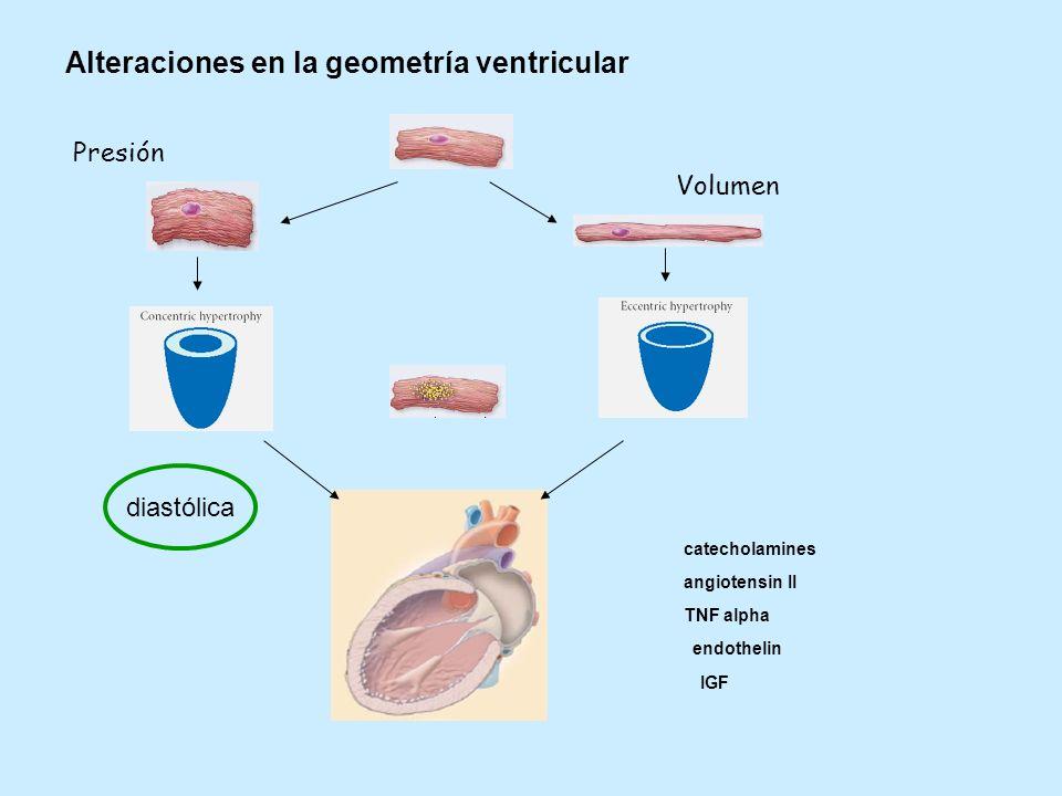 Alteraciones en la geometría ventricular