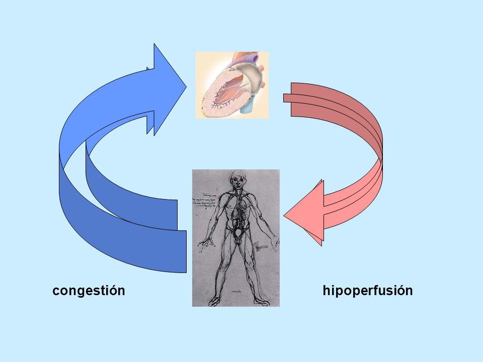 congestión hipoperfusión