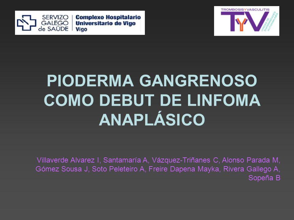 PIODERMA GANGRENOSO COMO DEBUT DE LINFOMA ANAPLÁSICO