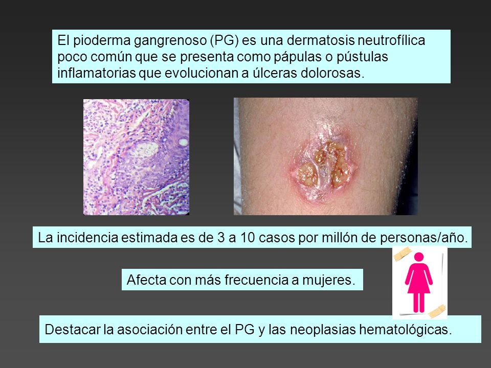 Destacar la asociación entre el PG y las neoplasias hematológicas.