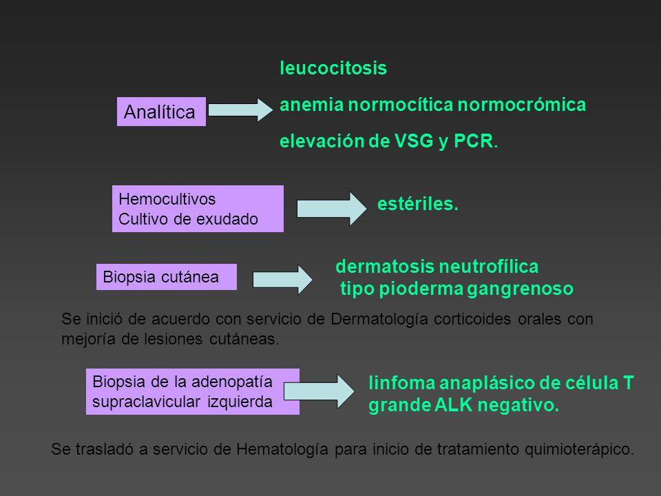 anemia normocítica normocrómica Analítica