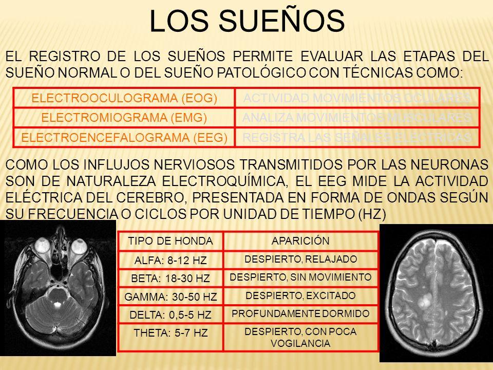 LOS SUEÑOSEL REGISTRO DE LOS SUEÑOS PERMITE EVALUAR LAS ETAPAS DEL SUEÑO NORMAL O DEL SUEÑO PATOLÓGICO CON TÉCNICAS COMO: