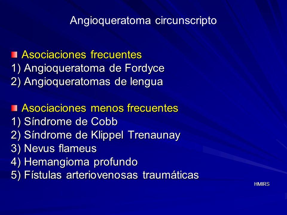 Angioqueratoma circunscripto