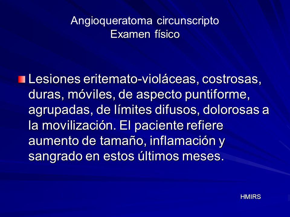 Angioqueratoma circunscripto Examen físico