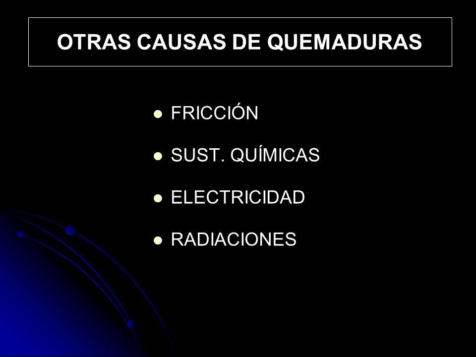 OTRAS CAUSAS DE QUEMADURAS