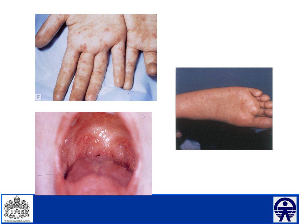 En resumen: Comité de Prevención y Control de Infecciones Asociadas a la Atención de Salud.