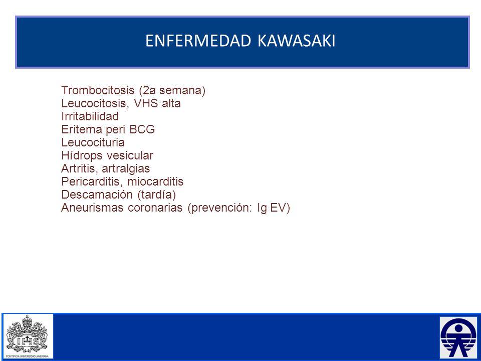 ENFERMEDAD KAWASAKI Trombocitosis (2a semana) Leucocitosis, VHS alta