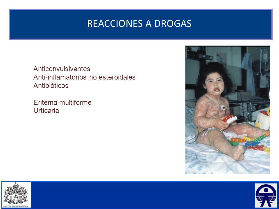 REACCIONES A DROGAS Anticonvulsivantes