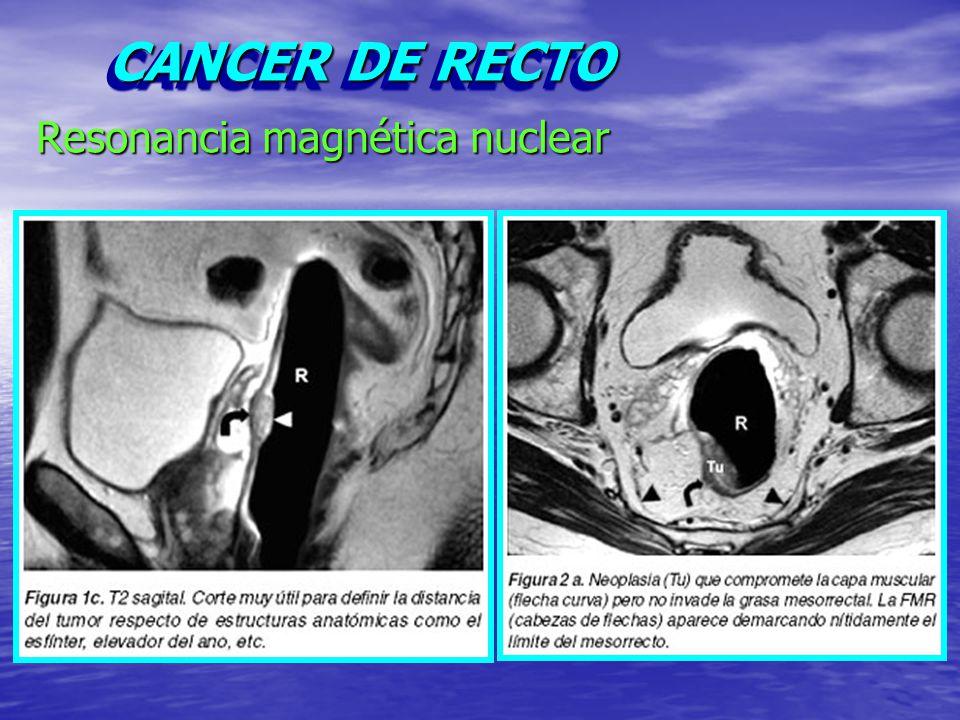 Excepcional Mri Anatomía Rectal Componente - Imágenes de Anatomía ...