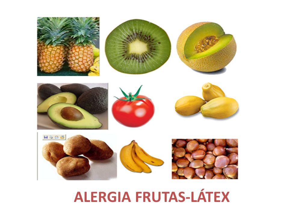ALERGIA FRUTAS-LÁTEX