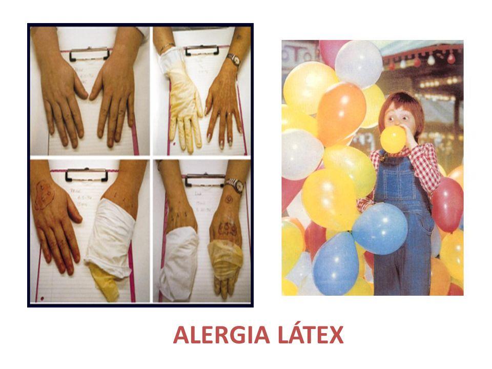 ALERGIA LÁTEX