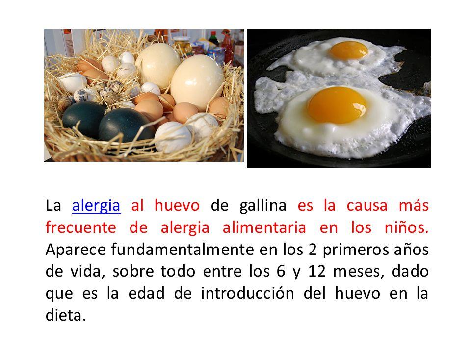 La alergia al huevo de gallina es la causa más frecuente de alergia alimentaria en los niños.