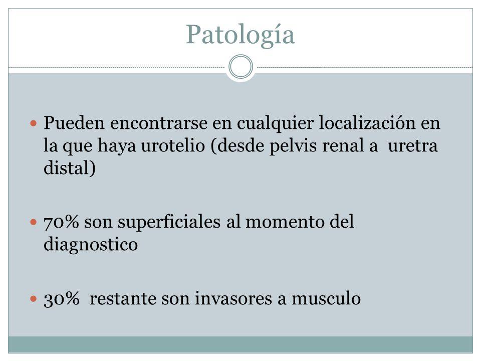 Patología Pueden encontrarse en cualquier localización en la que haya urotelio (desde pelvis renal a uretra distal)
