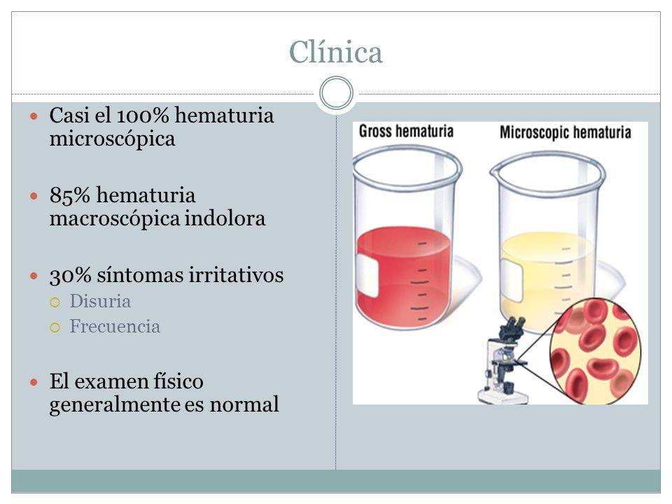 Clínica Casi el 100% hematuria microscópica