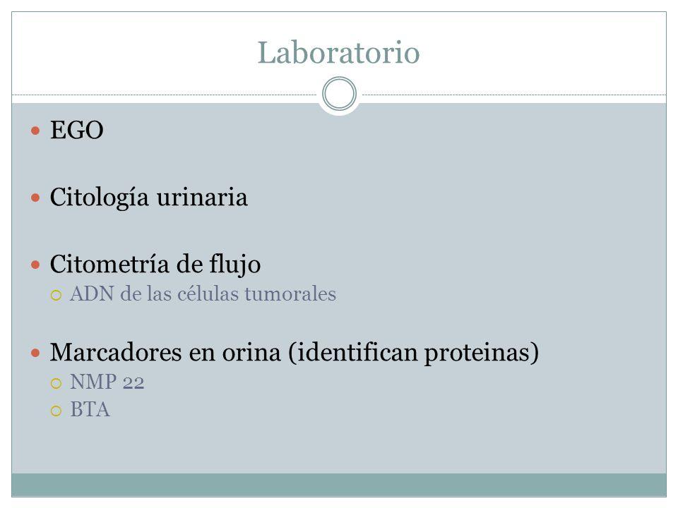 Laboratorio EGO Citología urinaria Citometría de flujo