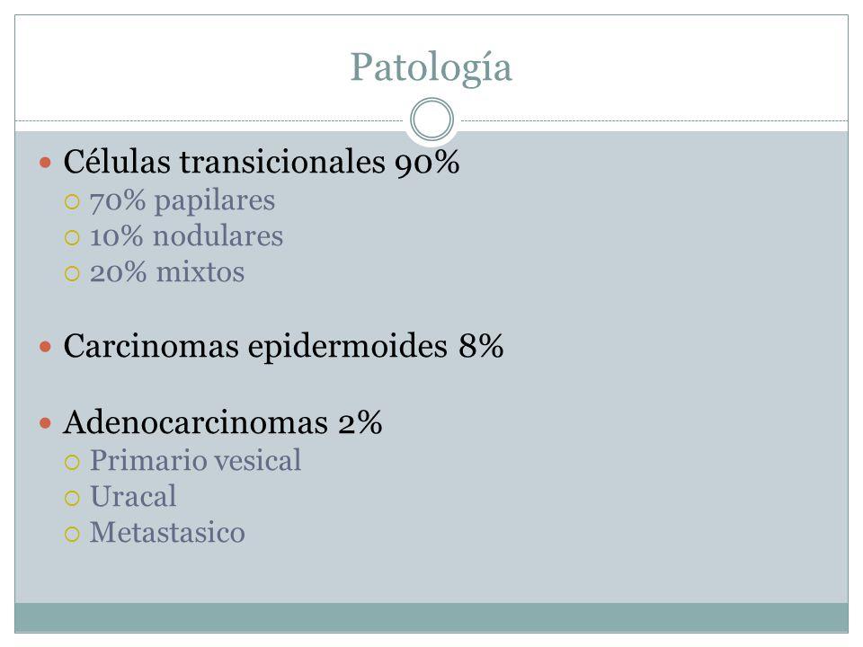 Patología Células transicionales 90% Carcinomas epidermoides 8%
