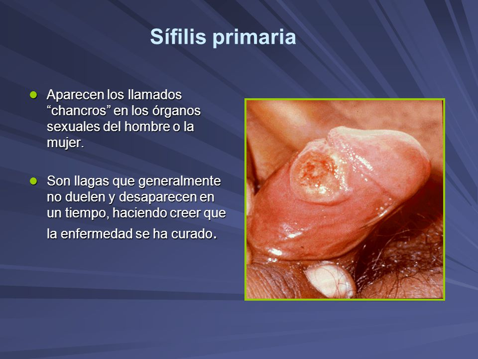 Sífilis primaria Aparecen los llamados chancros en los órganos sexuales del hombre o la mujer.