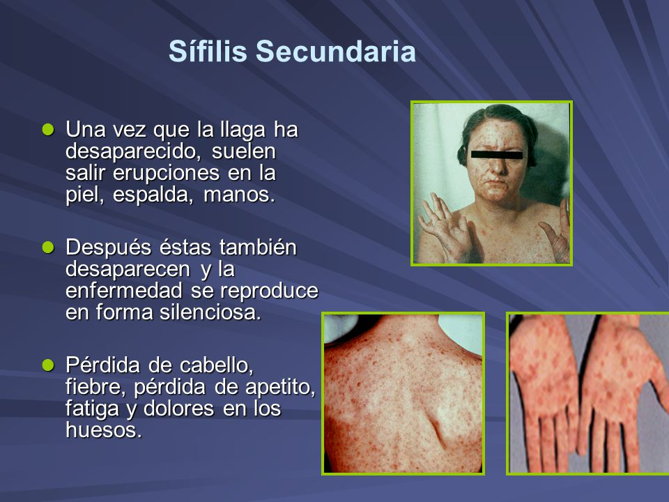 Sífilis Secundaria Una vez que la llaga ha desaparecido, suelen salir erupciones en la piel, espalda, manos.