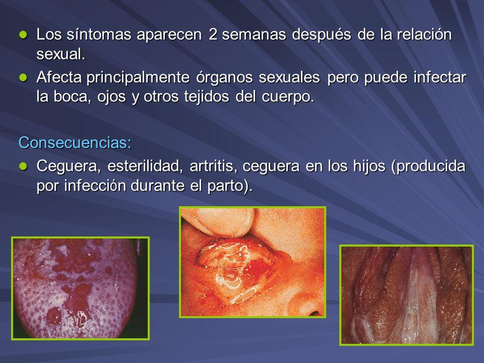 Los síntomas aparecen 2 semanas después de la relación sexual.