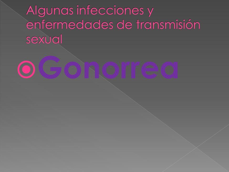 Algunas infecciones y enfermedades de transmisión sexual