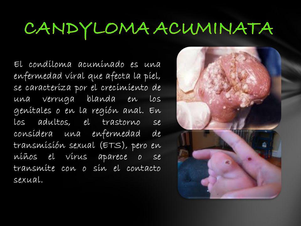 CANDYLOMA ACUMINATA