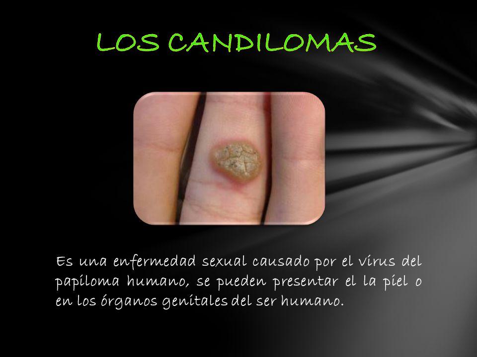 LOS CANDILOMAS