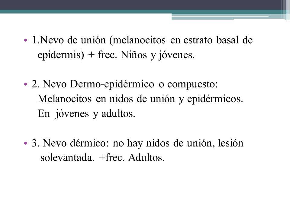 1.Nevo de unión (melanocitos en estrato basal de