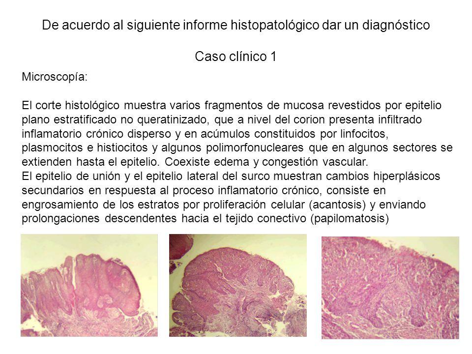 De acuerdo al siguiente informe histopatológico dar un diagnóstico