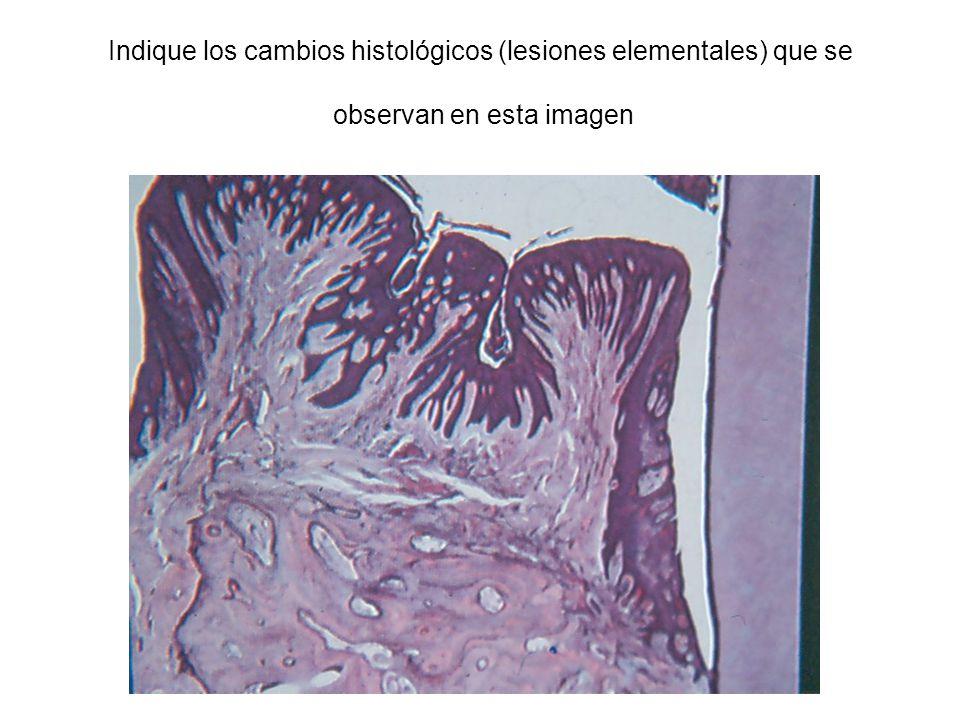 Indique los cambios histológicos (lesiones elementales) que se